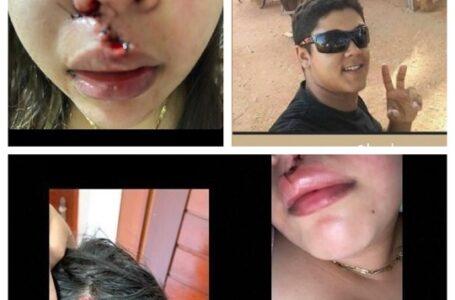 SERTÃO PARAIBANO : Jovens são agredidas com garrafada após se recusarem a dança com homem durante vaquejada