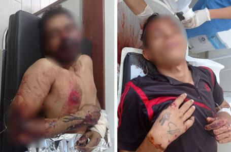 Dupla fica gravemente ferida após tentativa de assalto na PB-383 no sertão paraibano